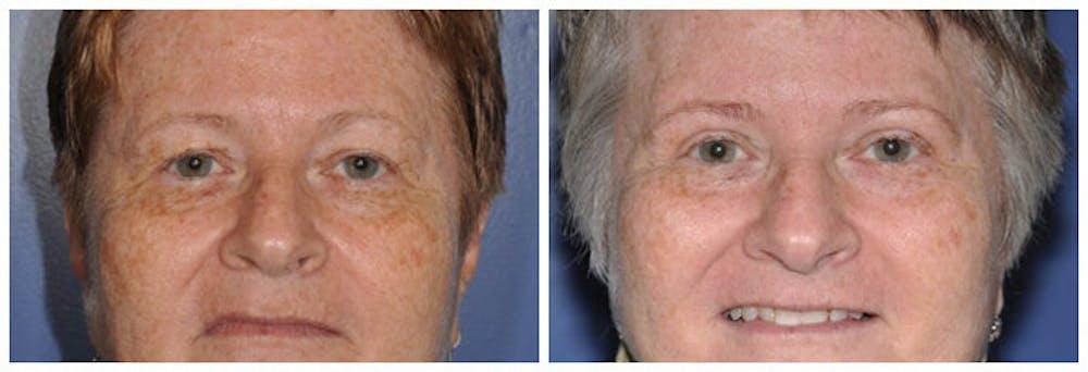 Upper Eyelids Gallery - Patient 30624081 - Image 2