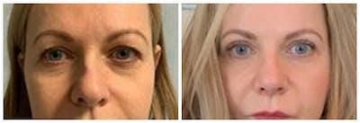 Upper Eyelids Gallery - Patient 30624083 - Image 1