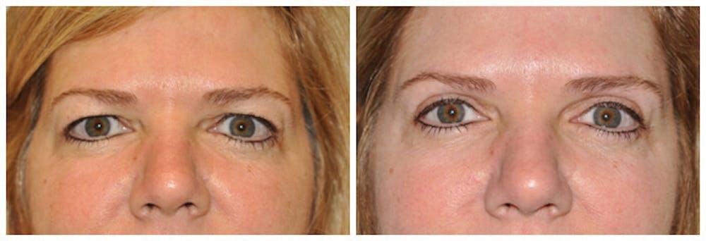 Upper Eyelids Gallery - Patient 30624084 - Image 1