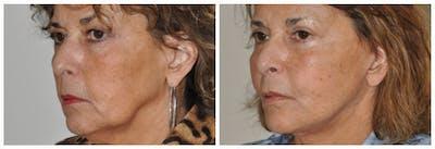Upper Eyelids Gallery - Patient 30624085 - Image 1