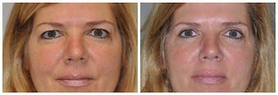 Upper Eyelids Gallery - Patient 30624084 - Image 2