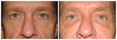 Upper Eyelids Gallery - Patient 30624086 - Image 1