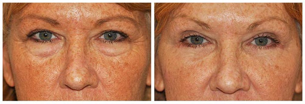 Lower Eyelids Gallery - Patient 30624090 - Image 1