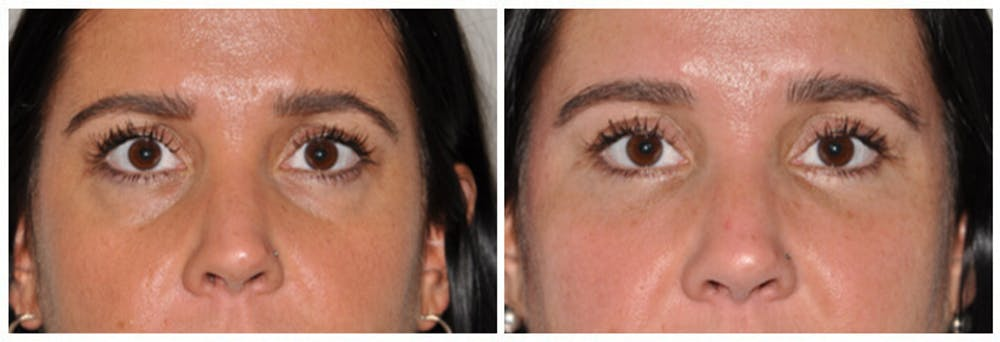 Lower Eyelids Gallery - Patient 30624091 - Image 1
