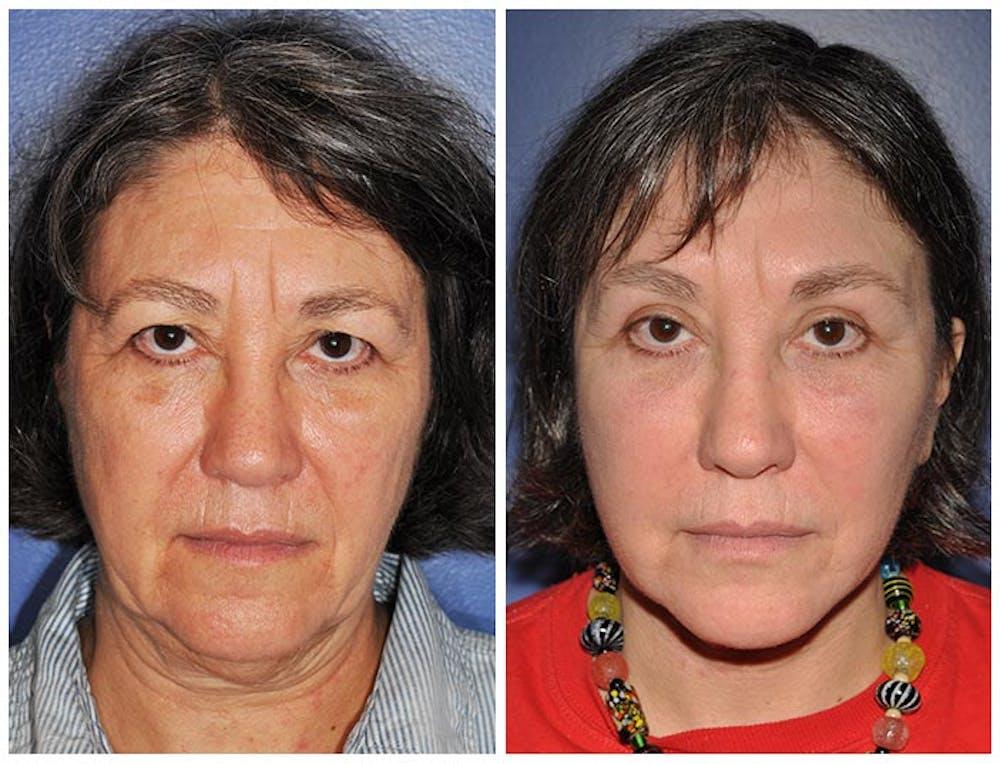 Facelift Gallery - Patient 30624095 - Image 1