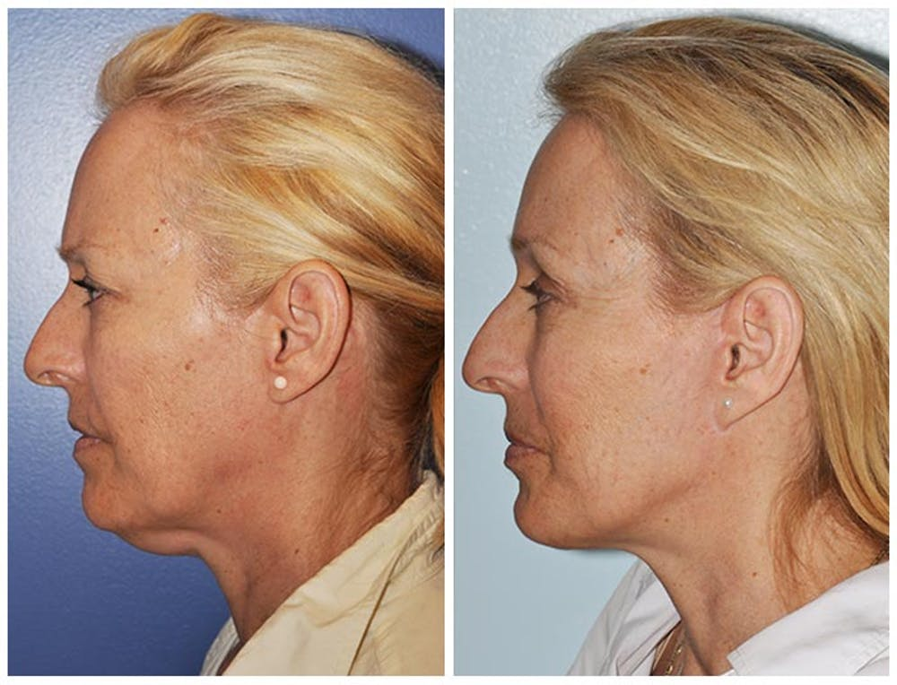Facelift Gallery - Patient 30624097 - Image 1