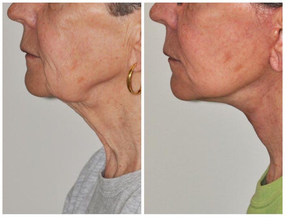 Facelift Gallery - Patient 30624098 - Image 1