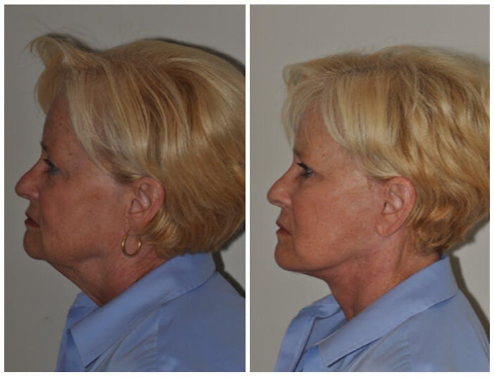 Facelift Gallery - Patient 30624101 - Image 1