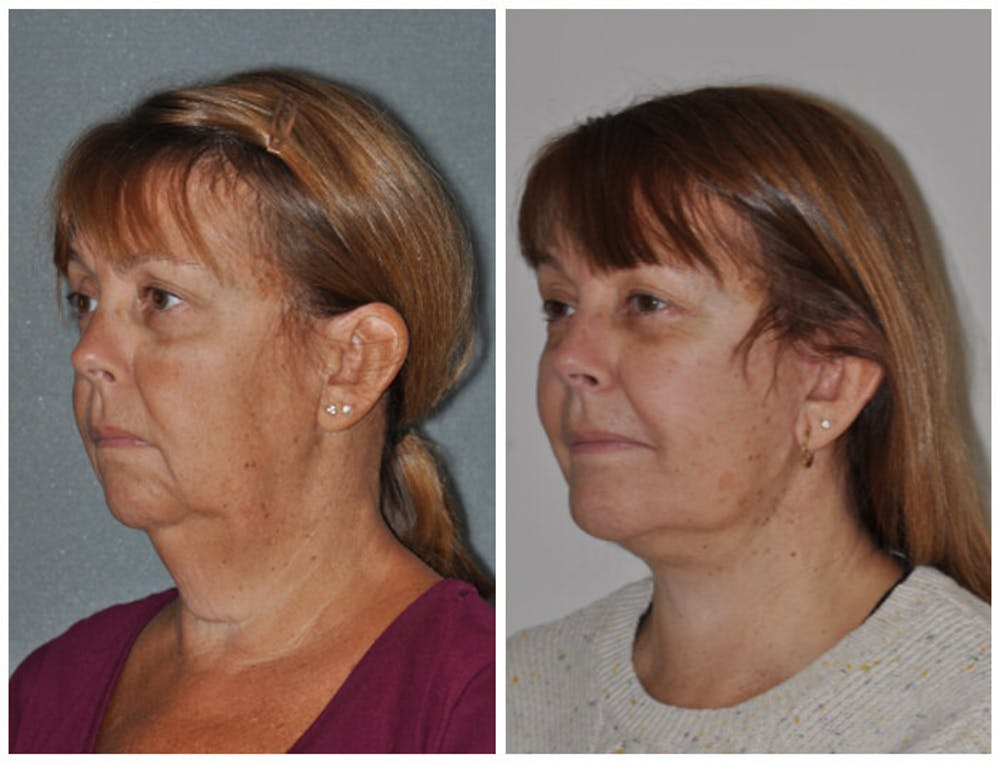 Facelift Gallery - Patient 30624102 - Image 1