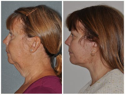 Facelift Gallery - Patient 30624102 - Image 2