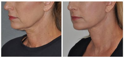 Facelift Gallery - Patient 30624103 - Image 1