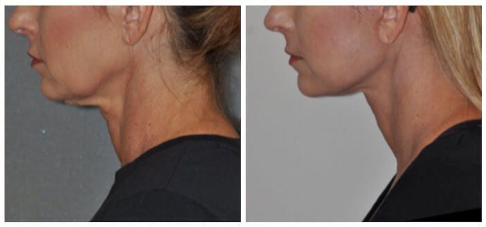 Facelift Gallery - Patient 30624103 - Image 2