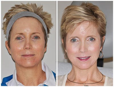 Laser Resurfacing Gallery - Patient 30624130 - Image 1