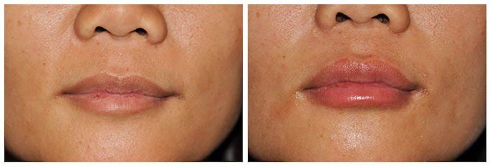 Lip Augmentation Gallery - Patient 30624142 - Image 1