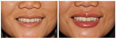 Lip Augmentation Gallery - Patient 30624142 - Image 2