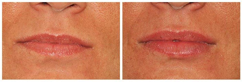 Lip Augmentation Gallery - Patient 30624144 - Image 1