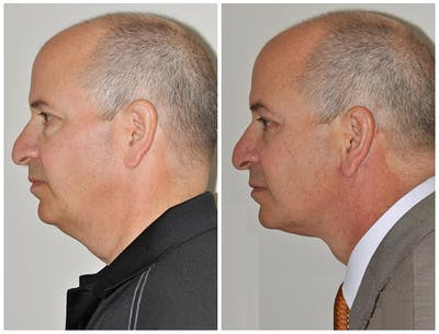 Neck Lift Gallery - Patient 30624146 - Image 1