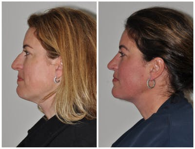 Neck Liposuction Gallery - Patient 30624149 - Image 1