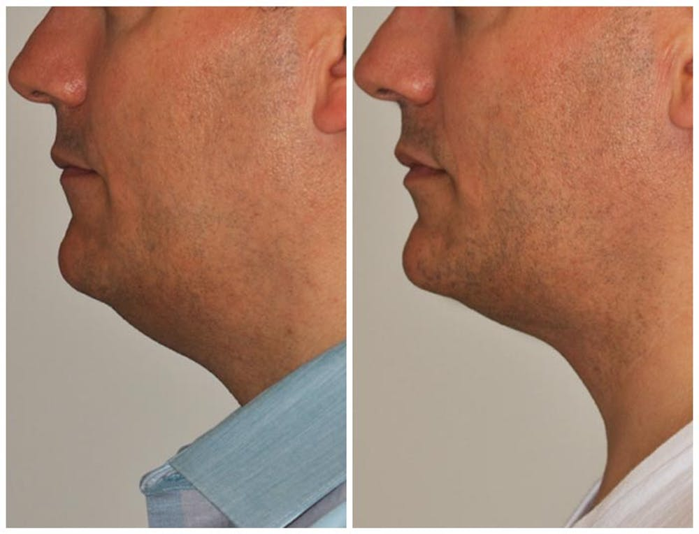 Neck Liposuction Gallery - Patient 30624150 - Image 1