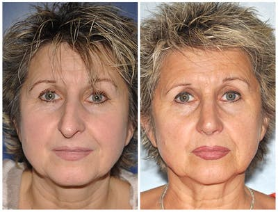 Rhinoplasty Gallery - Patient 30624165 - Image 1
