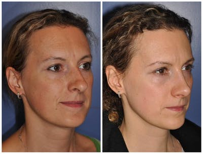 Rhinoplasty Gallery - Patient 30624166 - Image 1