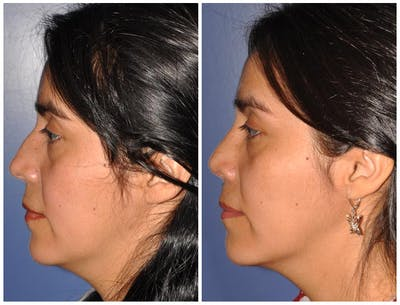 Rhinoplasty Gallery - Patient 30624167 - Image 1