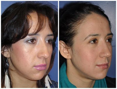 Rhinoplasty Gallery - Patient 30624168 - Image 1