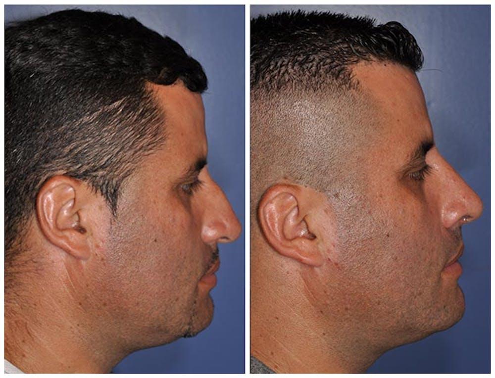 Rhinoplasty Gallery - Patient 30624170 - Image 1