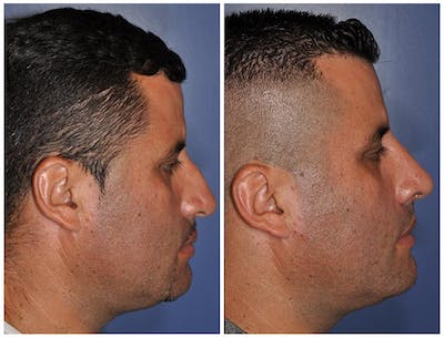 Rhinoplasty Gallery - Patient 30624170 - Image 1