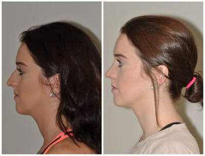 Rhinoplasty Gallery - Patient 30624171 - Image 1