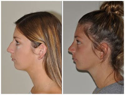 Rhinoplasty Gallery - Patient 30624173 - Image 1