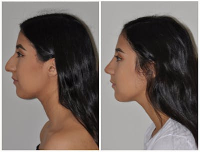 Rhinoplasty Gallery - Patient 30624175 - Image 1