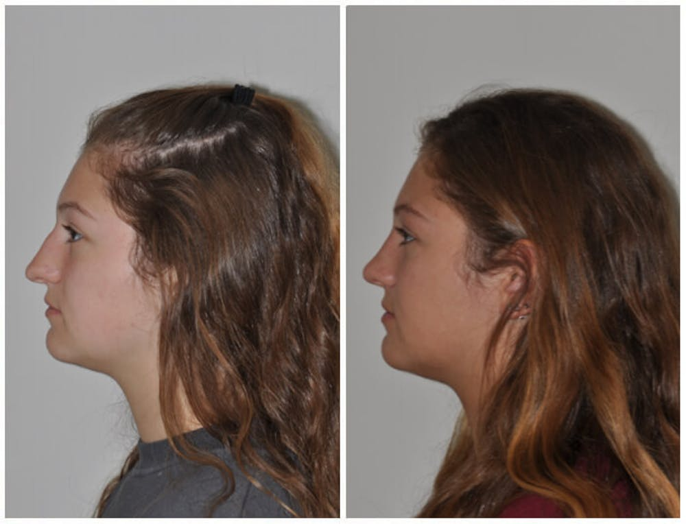 Rhinoplasty Gallery - Patient 30624174 - Image 3