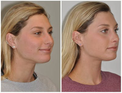 Rhinoplasty Gallery - Patient 30624176 - Image 1