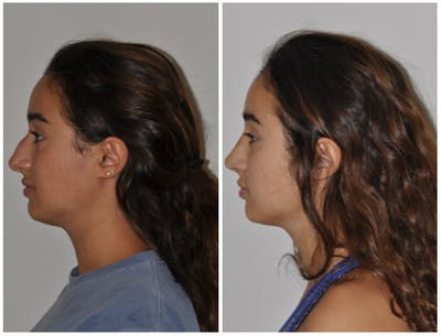 Rhinoplasty Gallery - Patient 30624177 - Image 1