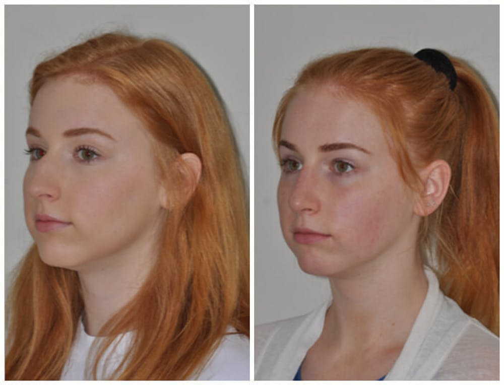 Rhinoplasty Gallery - Patient 30624178 - Image 1