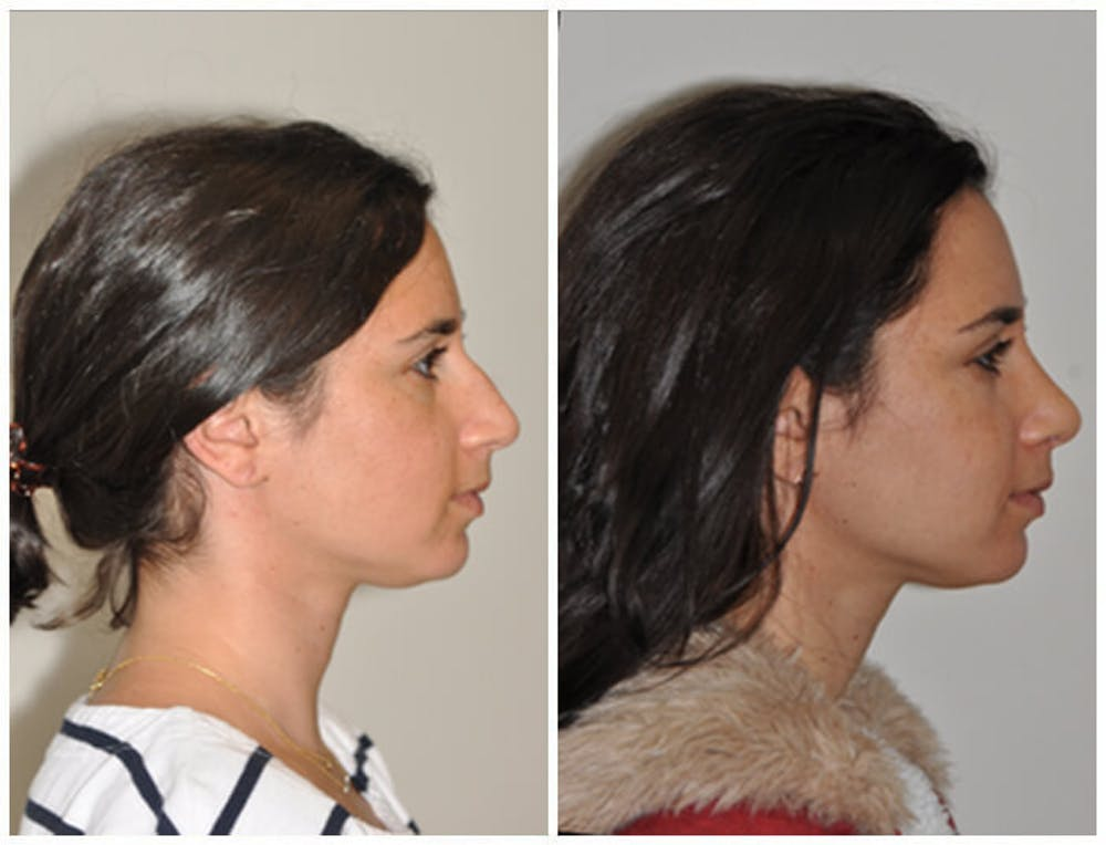 Rhinoplasty Gallery - Patient 30624179 - Image 1