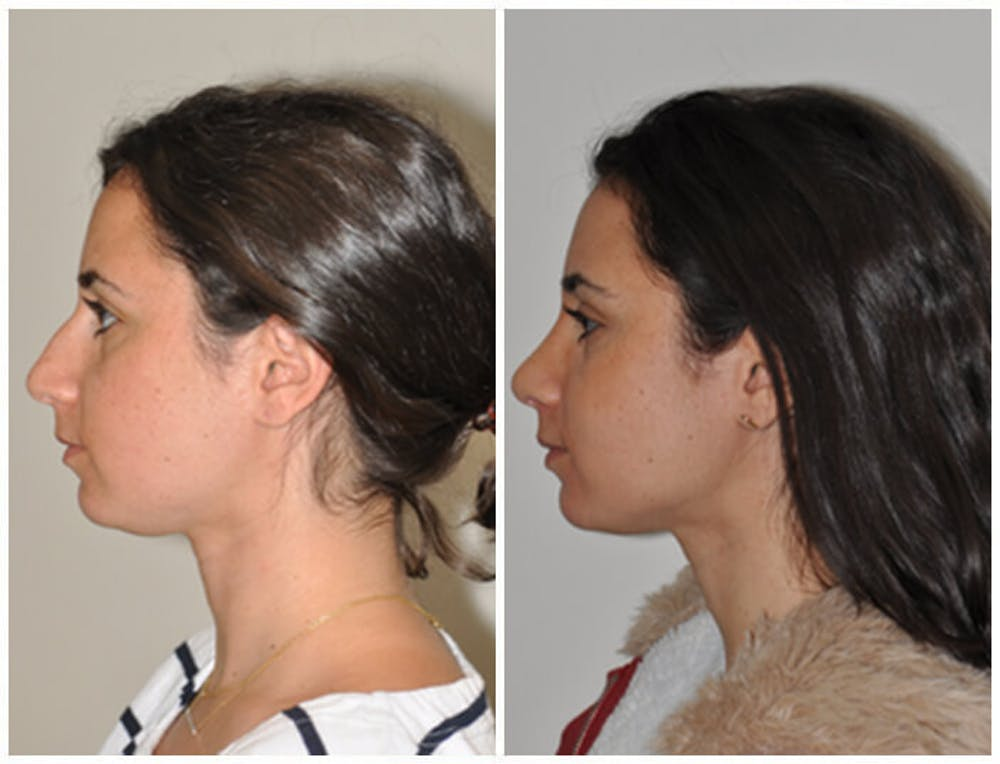 Rhinoplasty Gallery - Patient 30624179 - Image 2