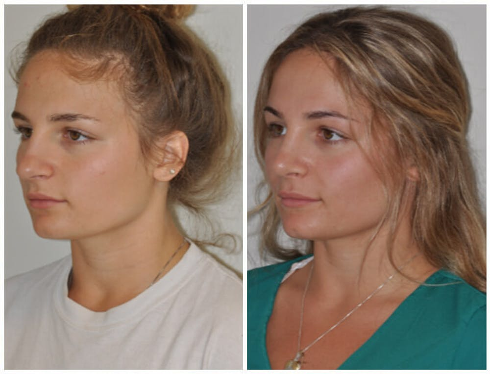 Rhinoplasty Gallery - Patient 30624180 - Image 1