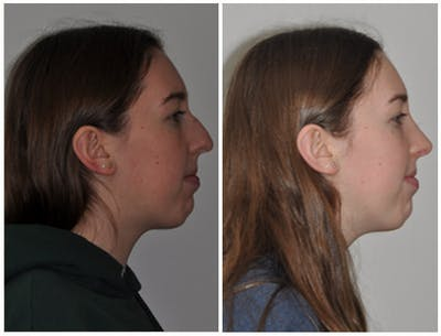 Rhinoplasty Gallery - Patient 30624181 - Image 1