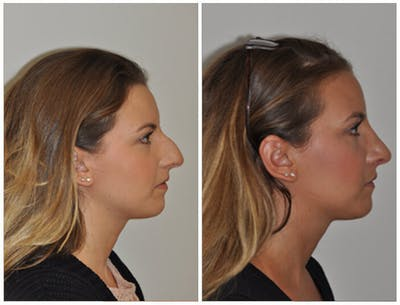 Rhinoplasty Gallery - Patient 30624182 - Image 1