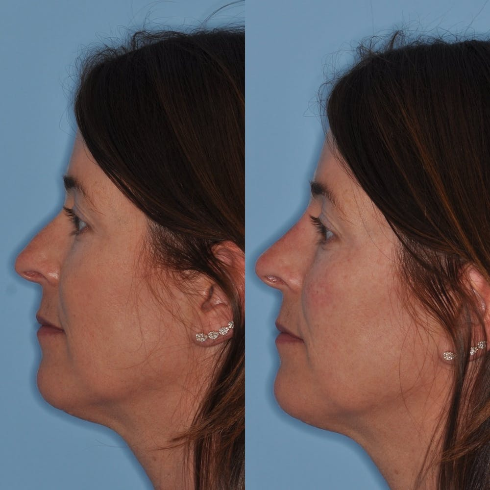 Non-Surgical Rhinoplasty Gallery - Patient 31709163 - Image 1