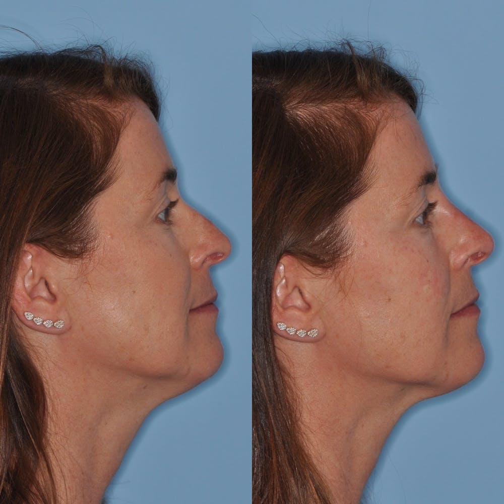 Non-Surgical Rhinoplasty Gallery - Patient 31709163 - Image 3