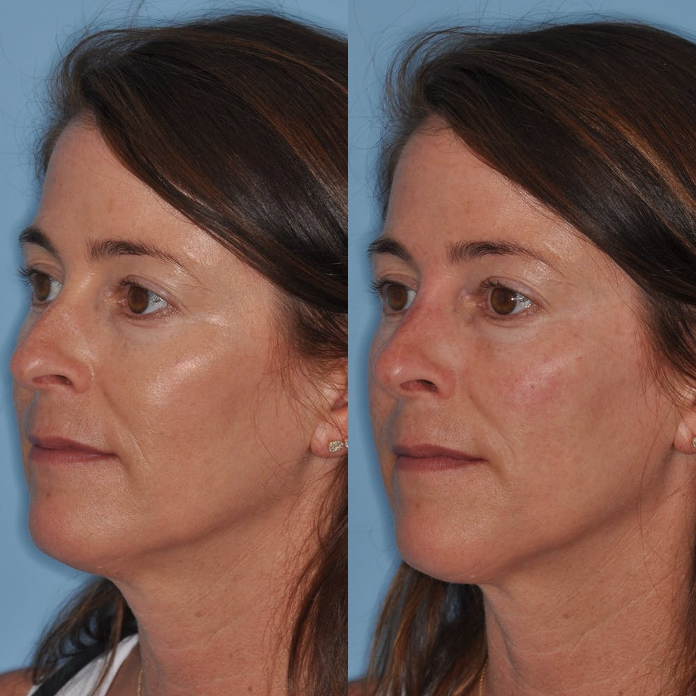 Non-Surgical Rhinoplasty Gallery - Patient 31709163 - Image 4