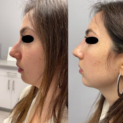 Non-Surgical Rhinoplasty Gallery - Patient 31709164 - Image 1