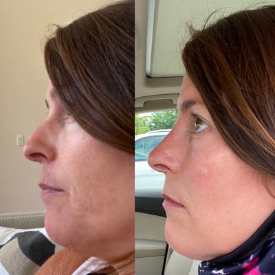 Non-Surgical Rhinoplasty Gallery - Patient 31709163 - Image 6