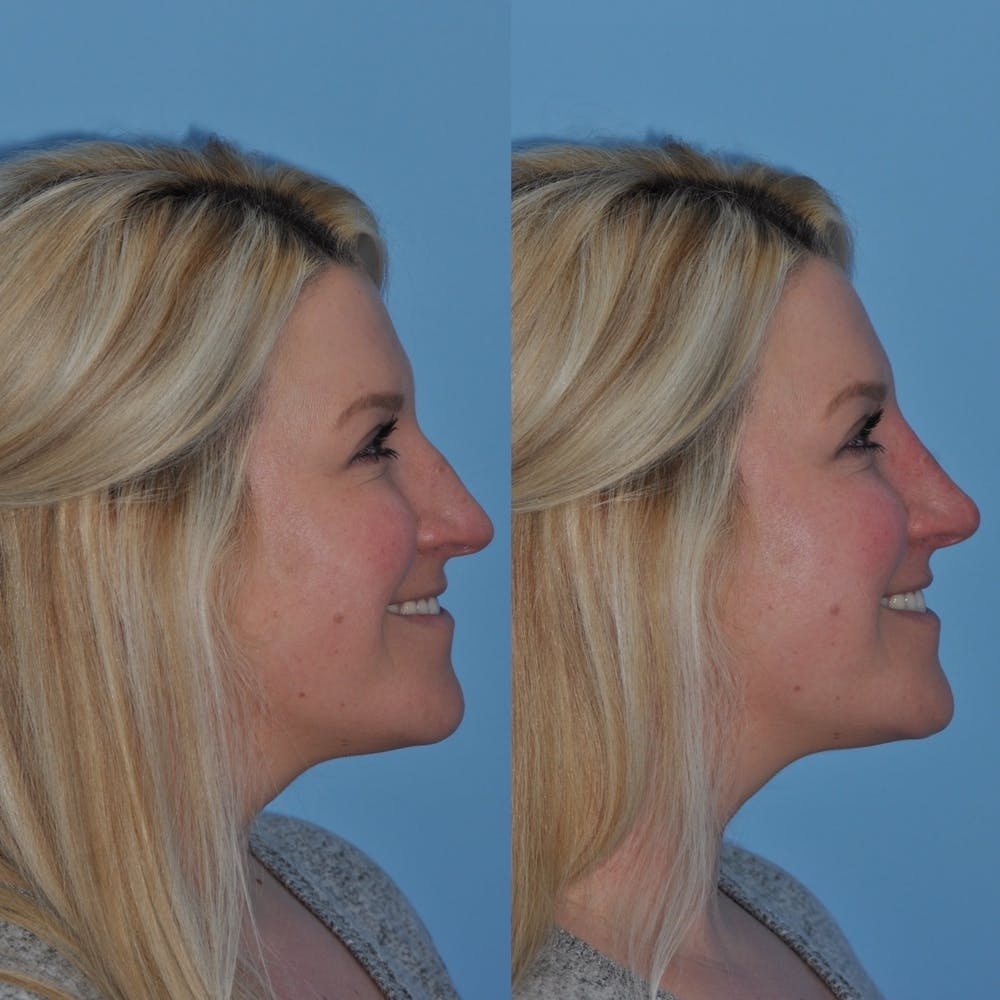 Non-Surgical Rhinoplasty Gallery - Patient 31709165 - Image 1