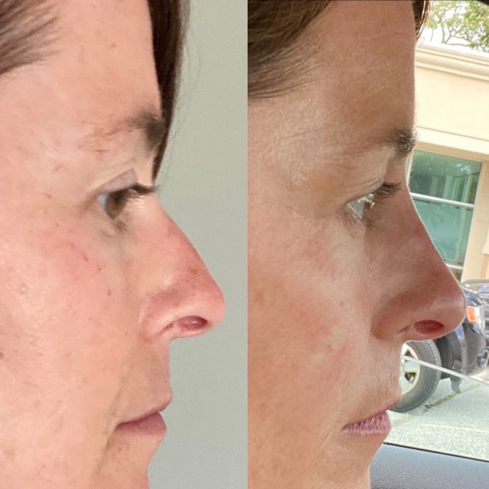 Non-Surgical Rhinoplasty Gallery - Patient 31709163 - Image 7