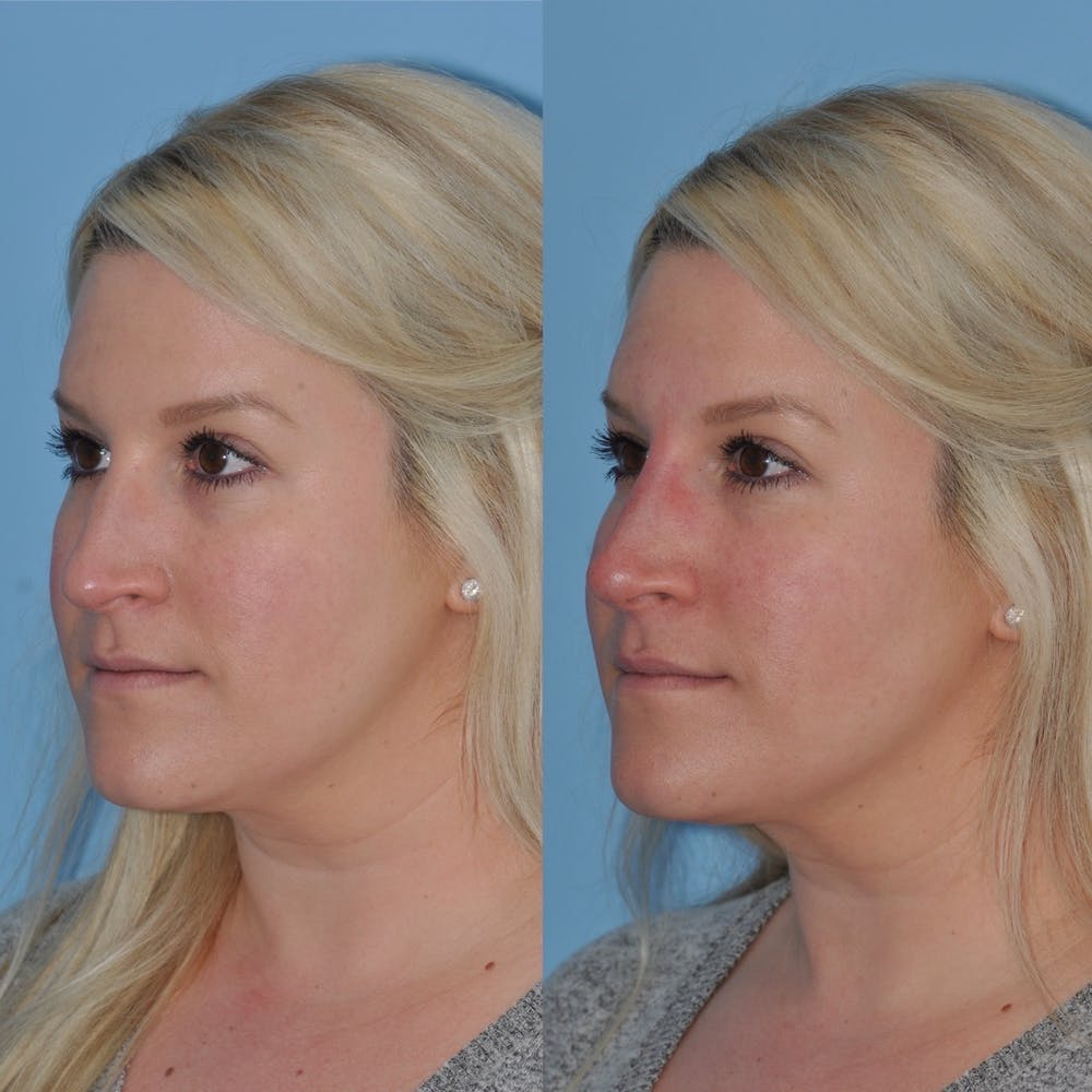 Non-Surgical Rhinoplasty Gallery - Patient 31709165 - Image 2