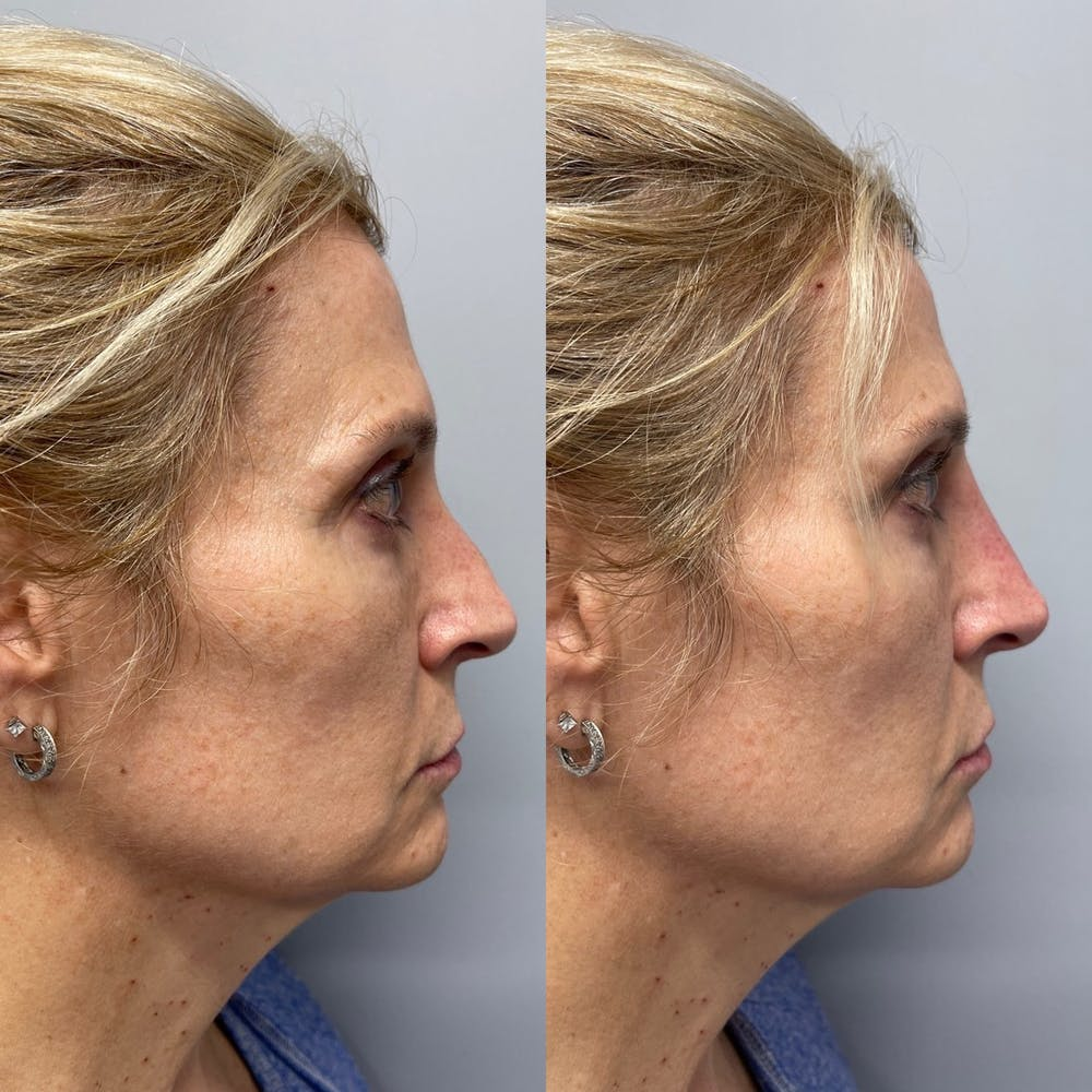 Non-Surgical Rhinoplasty Gallery - Patient 31709166 - Image 1